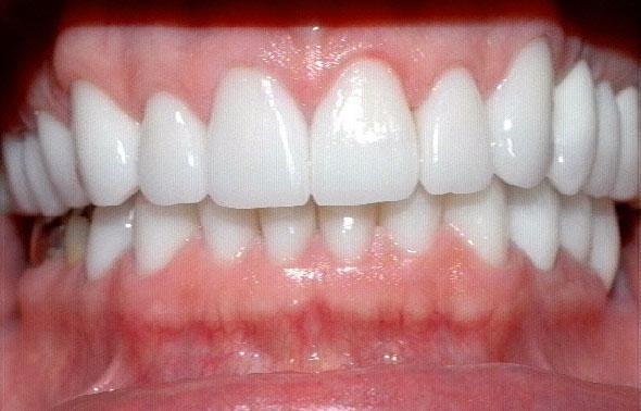 Svend… Psykopat tandlægen fra Helsingør