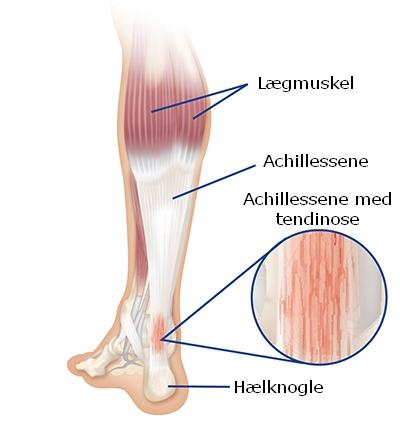 Så kom det igen: Akillessene tendinopati